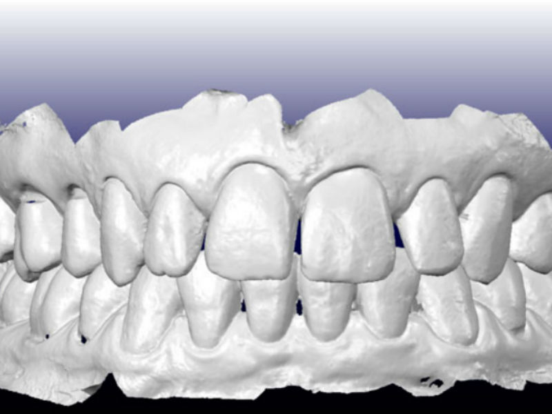 Escáneres 3D, la odontología se abre a una tercera dimensión