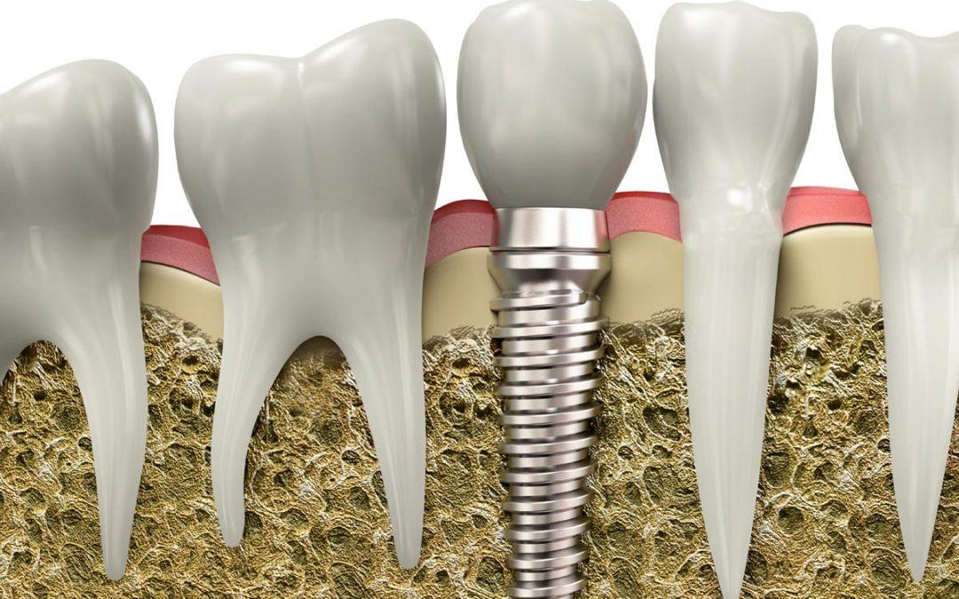 Implantes dentales en nuestra clínica dental de Chamberí